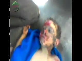 اوباما حامی دمکراسی! چرا بر کودکان مسلمان نمی گرید! (2)